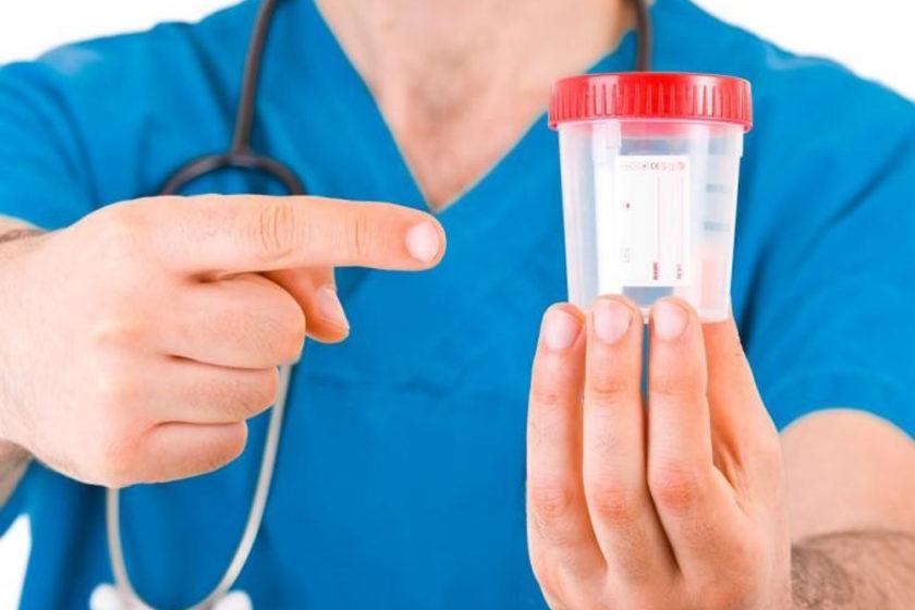 Tips on taking a Urine Drug Test