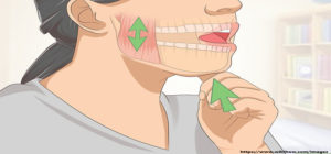 How to temporarily treat TMJ syndrome in the absence of a doctor