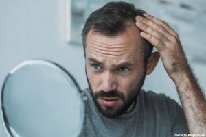 Hair Transplant Options Available for Balding Men