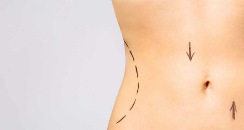 Considering CoolSculpting to Remove Fat Deposits