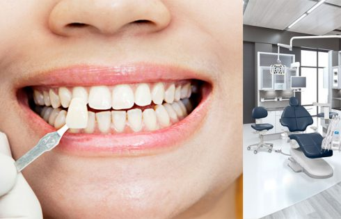 Tips for Choosing The Best Dental Clinic For Your Teeth
